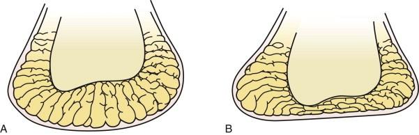 Esquema mostra as almofadas de gordura nos pés de um jovem e um idoso. Assim, na mulher +50 usar salto alto causa dor.
